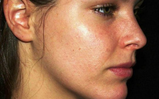 What is a Blackhead and What Cause Blackheads and How to Get Rid