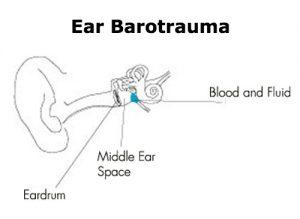 Ear Barotrauma