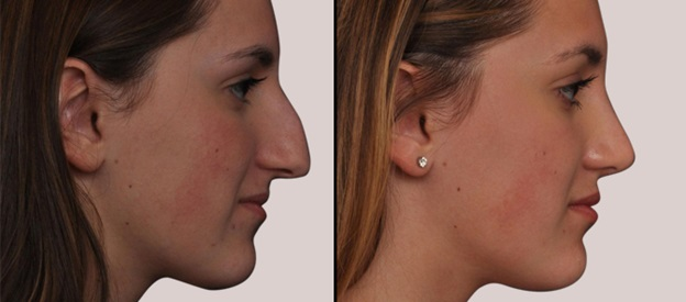 Swelling Faced After a Rhinoplasty Surgery