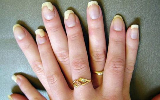 Differentiate Between Nail Infections And Nail Fungus