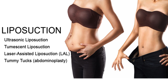 Why Should You Include Liposuction with Your Tummy Tuck?