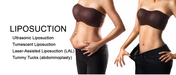 Liposuction with Your Tummy