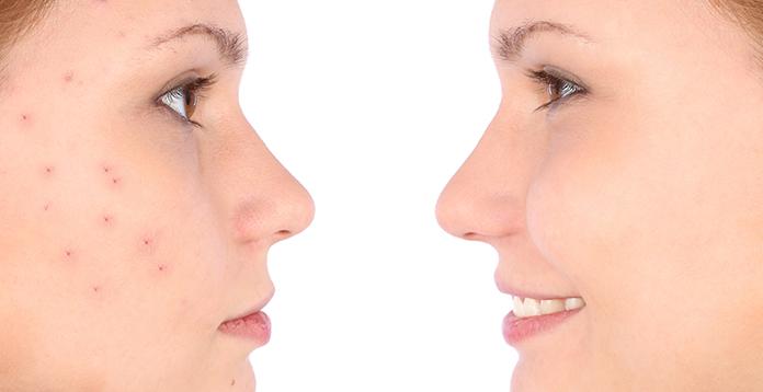 Medicines To Treat Pimples
