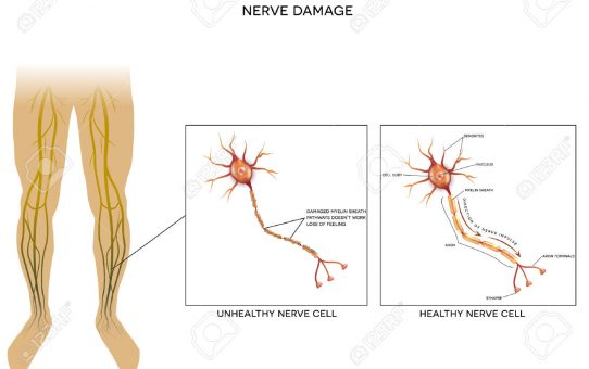 Types Of Diabetic Neuropathy And Its Symptoms