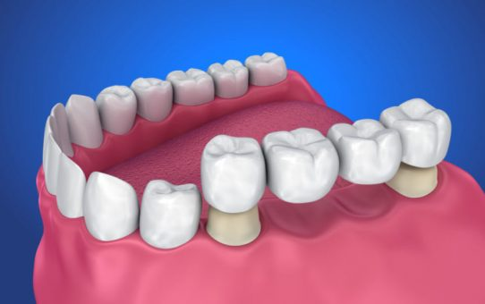 Complete Guide for selecting Dental Bridges to Replace Missing Teeth