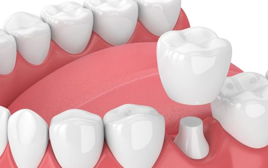 Factors to Consider When Selecting the Best Kind of Dental Crowns