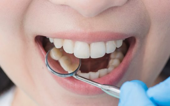 How Do I Take My Proper Dental Care?