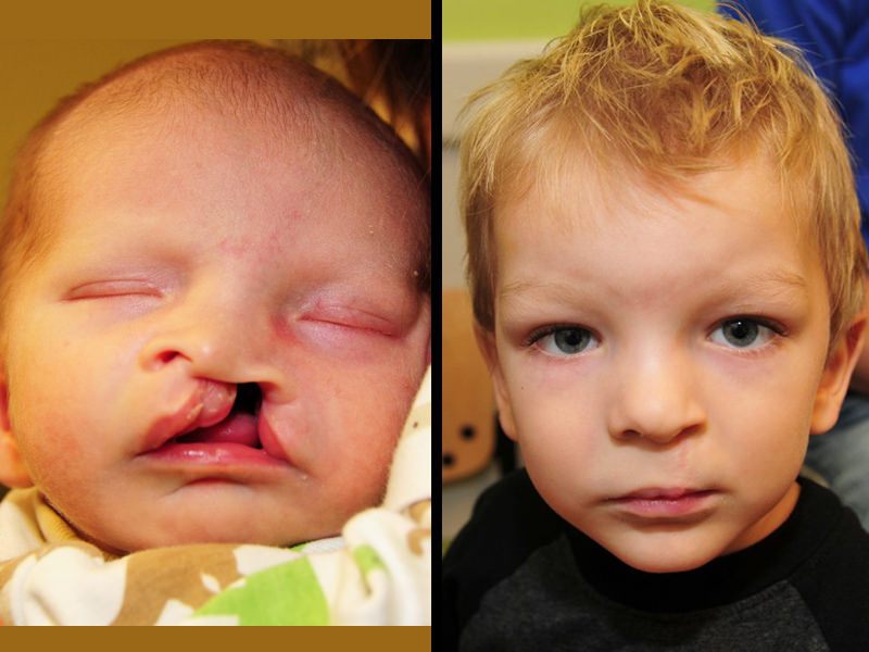 Cleft lip Surgery cost in india