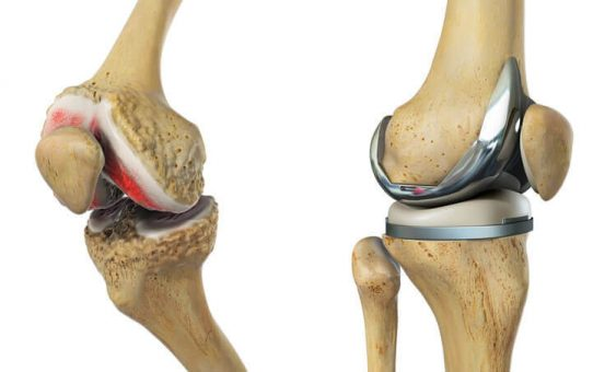 Treatment of knee arthritis at Gurgaon for complete recovery from knee pain