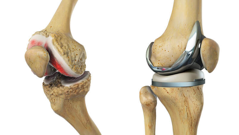 knee replacement surgeon in gurgaon