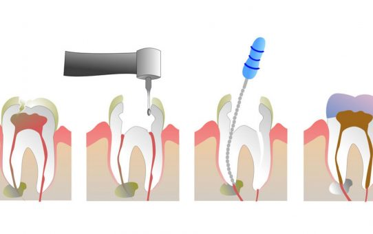 What is Root Canal Treatment and What is the Procedure?