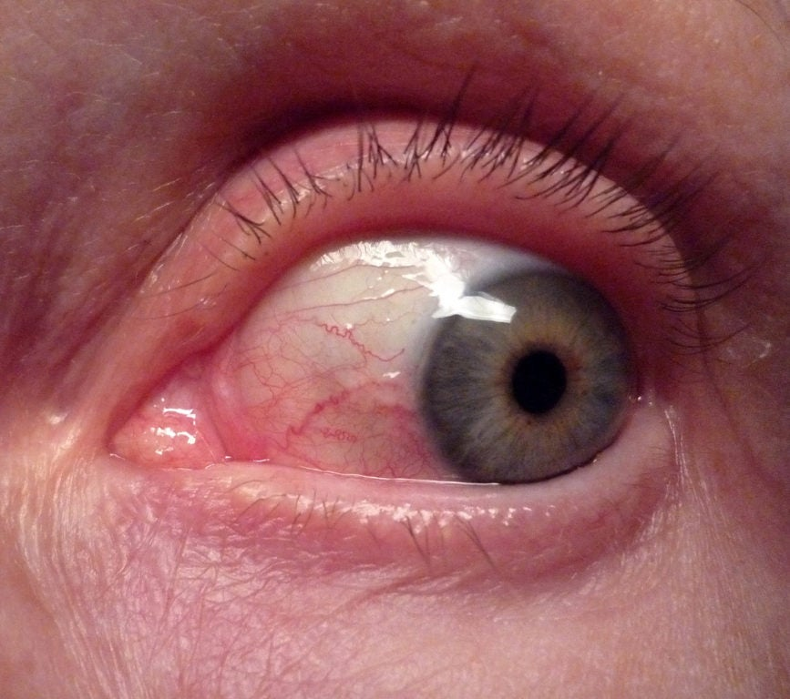 red eye spot reason and treatment