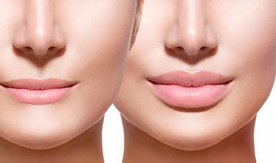 Advantages and Risk of Lip Surgery