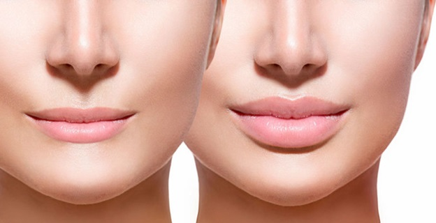 benefits and risk in lips surgery