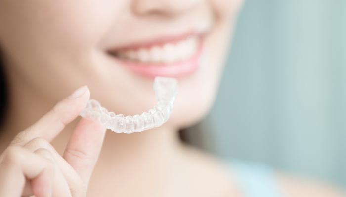 how to clean Clear-Aligners