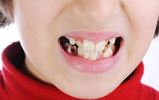 How Sugar put its impact on Children Teeth's
