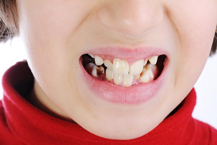 sugar impact on kids teeth