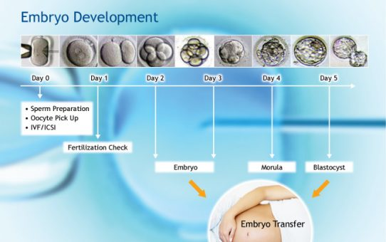 IVF and benefits