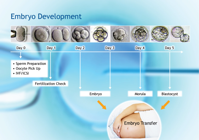 IVF treatment in turkey