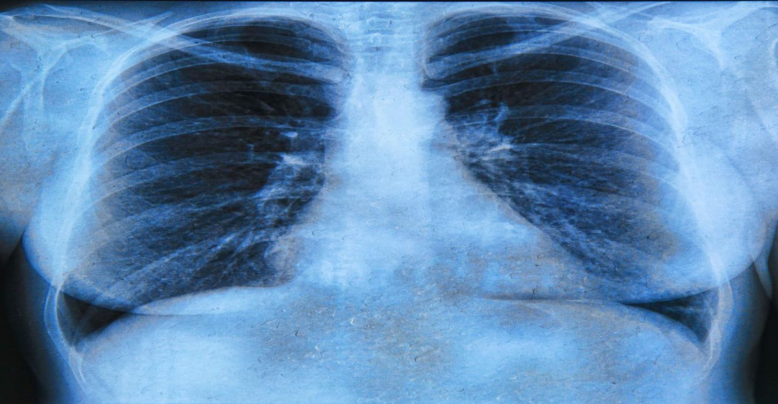 lung infection surgery cost in Delhi