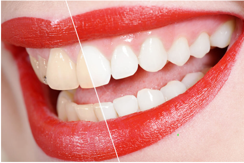 Teeth Whitening; What to Eat & What Not to Eat for Next 48 Hours